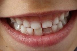 teeth-1743981__180