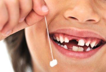 dientes-de-leche-que-caen-2